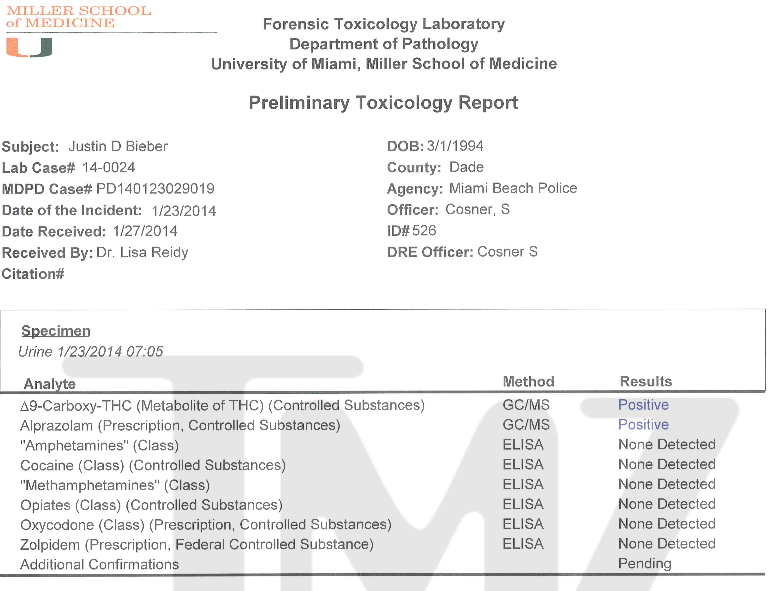 Justin Bieber Toxicology Results
